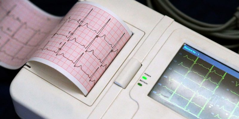 Heartbeat Biometrics